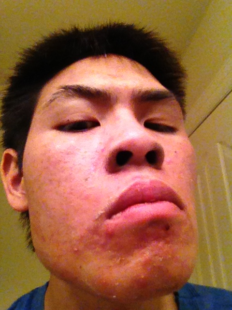 my face and acne scars and remaining active acne.
