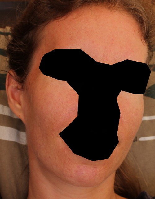 No more acne