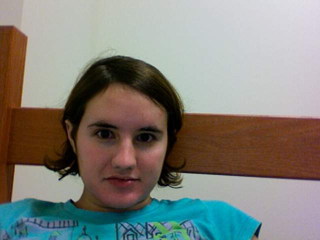 Two months off Accutane-- October 2011, losing hair rapidly
