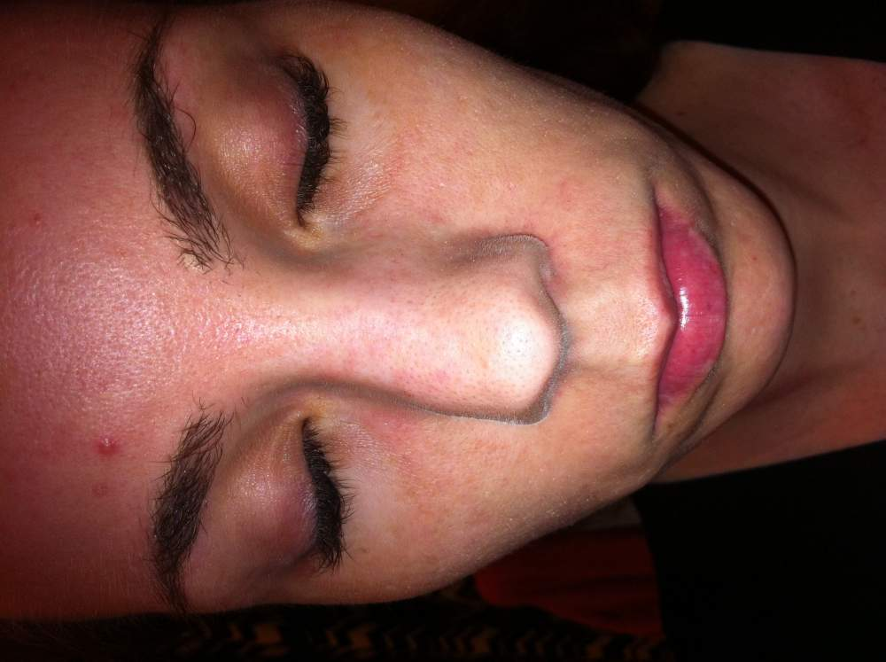 Sallow, Dry Skin, thinned eyebrows