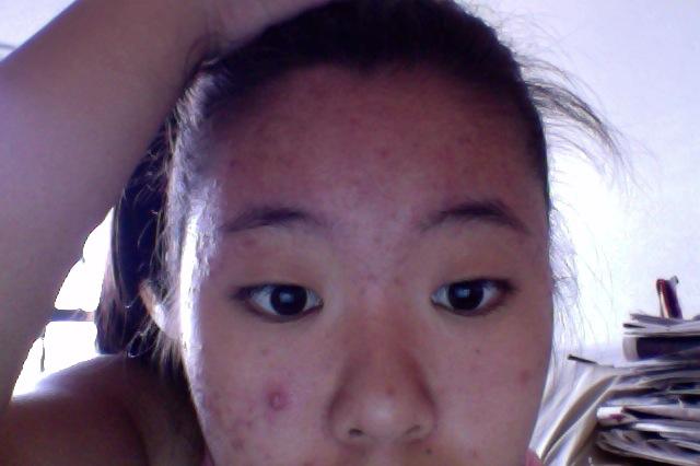 Top half of my face