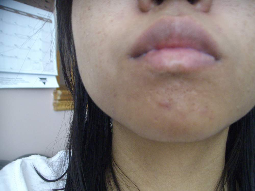 April 17,2013  scar on chin