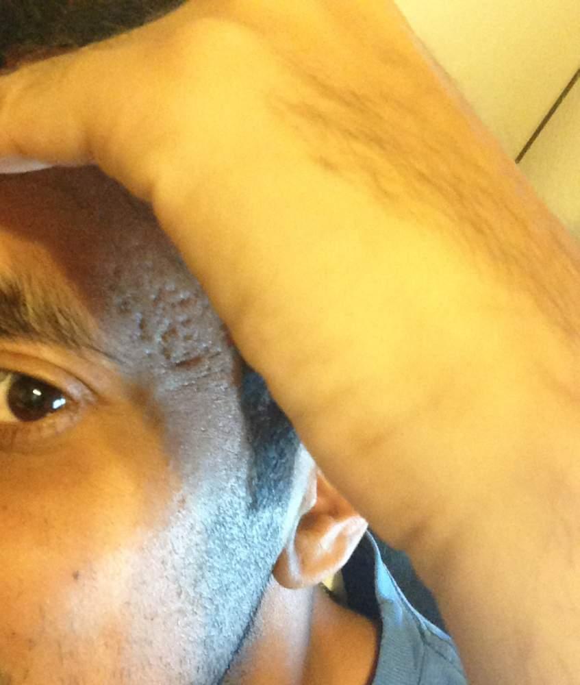 Left side temporal region deep pock mark scars