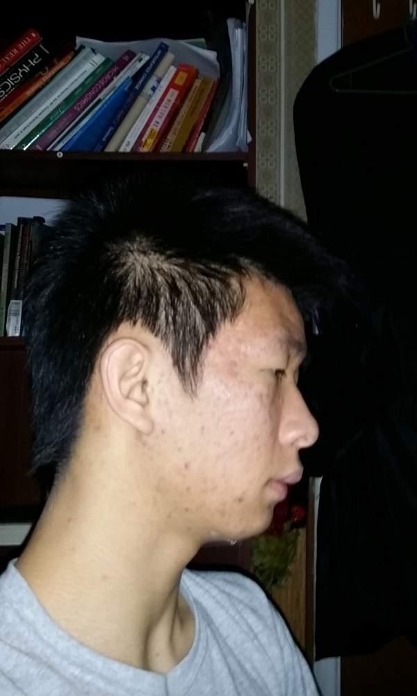 Acne right
