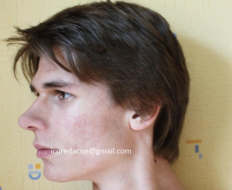 left face