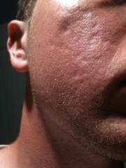 What scars are these?