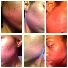 What The Regimen has Done for my Skin