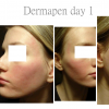 Dermapen treatment day 1
