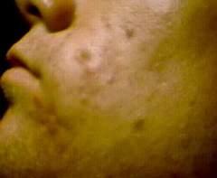 Close up 2 9/25