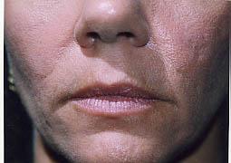 5 weeks post dermabrasion