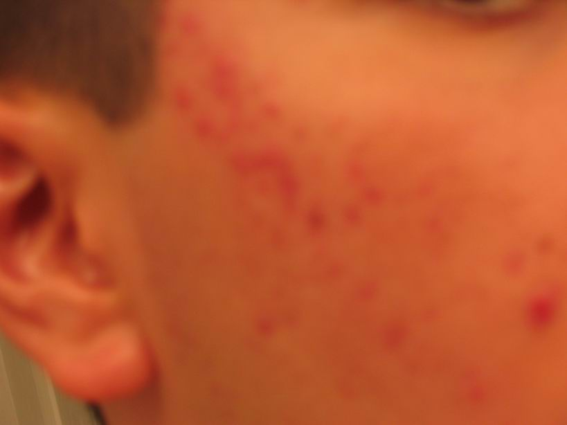 12.27.04 One month of accutane 80mg/day... Still taking b5 1