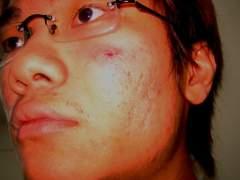 Zanneti's acne...