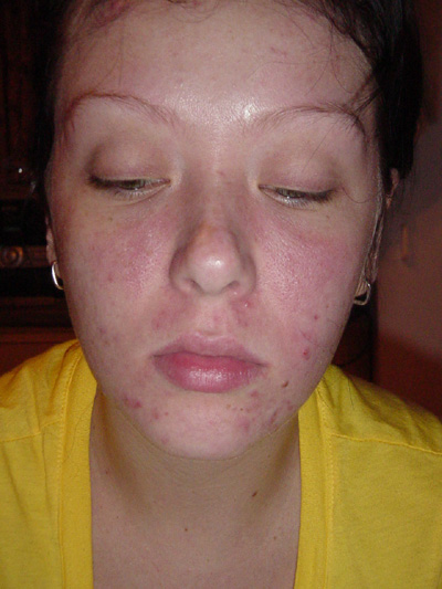 before accutane, without makeup