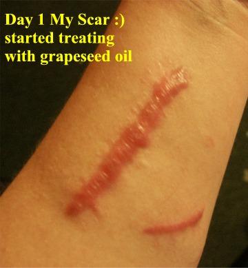 The dreaded scar!