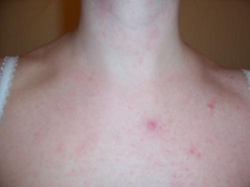 Chest Pimples