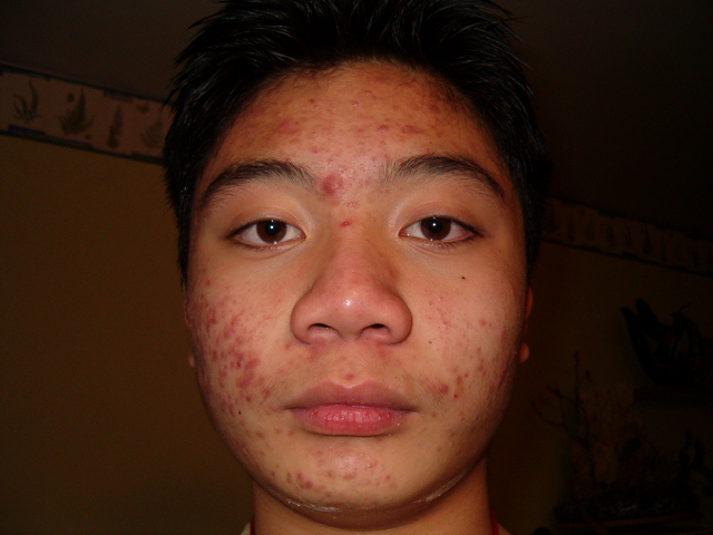 First acne full face shot