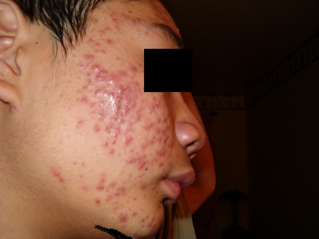 First Acne