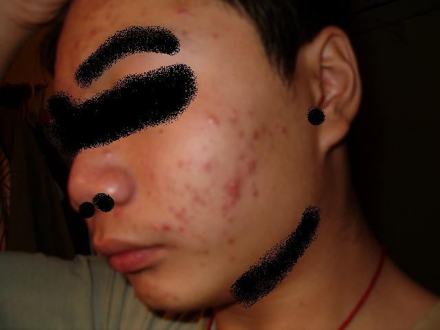 First Acne Other side