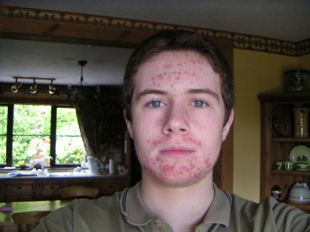 Just in Front of the window, day after I started RoAccutane