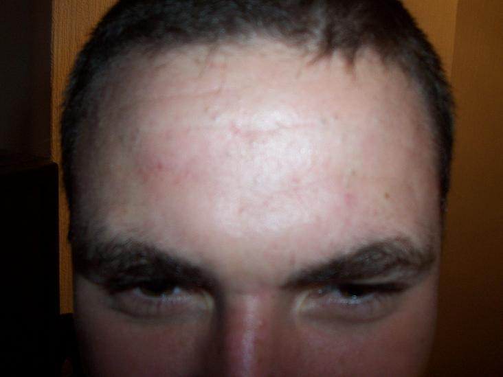 My forehead