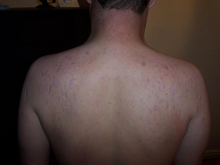 My back which looks like the moon surface.lol