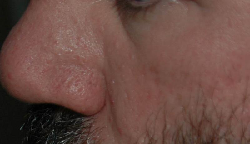 scar 6