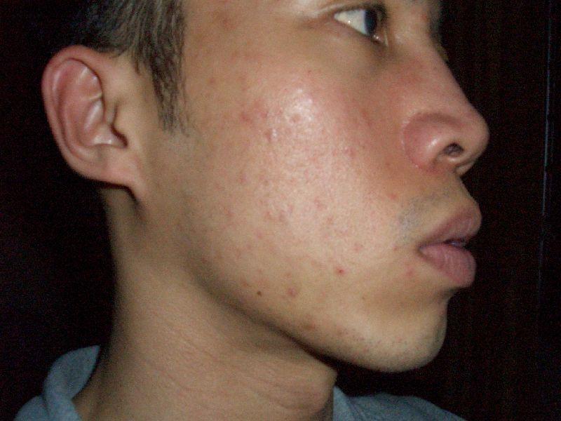 The Clear Skin Regimen