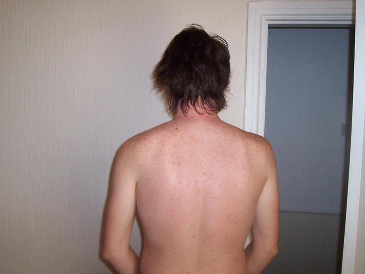 My back after using Neutrogena visibly clear :D