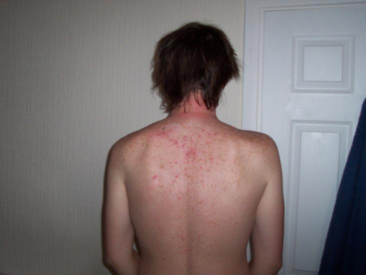 My back acne before i used Neutrogena visibly clear :D