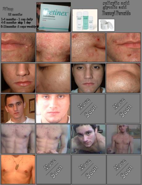 6 Months Progress