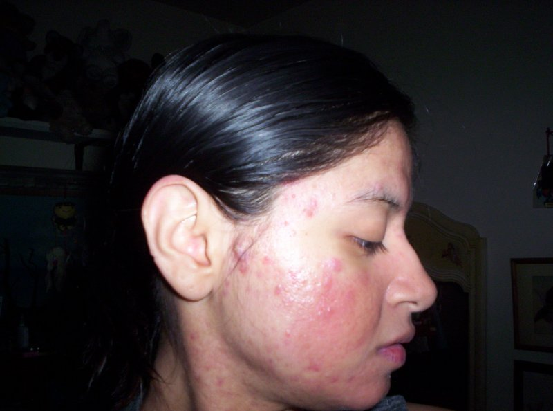 Right face - day 41 on accutane
