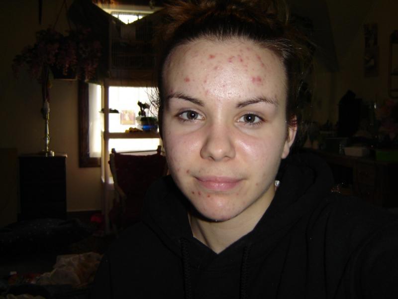 Acne Improvement From Retin-A-micro
