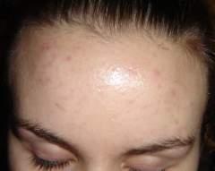 my battle scars EEK 10/5/05