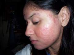 left side..day 51- on accutane