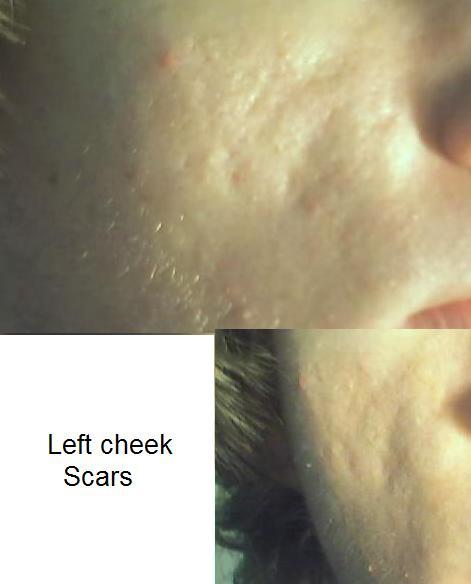 Left Cheek Scars
