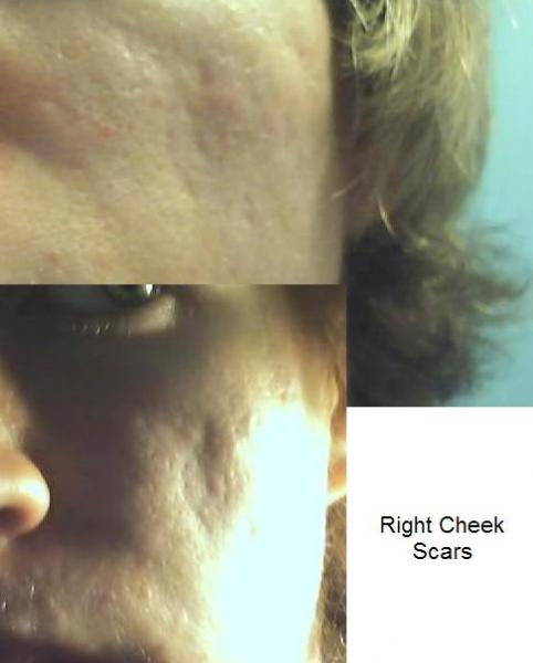 Right Cheek Scars