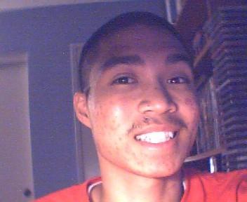 me smiling - ugh this acne