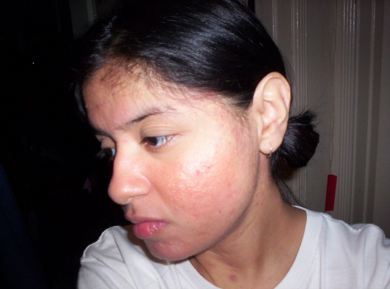 Day 81 on accutane (left side)