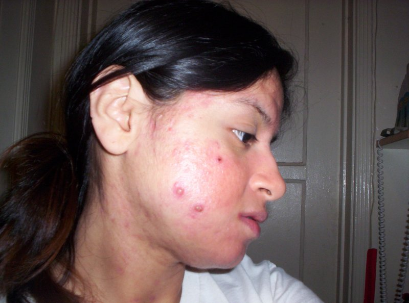 Day 81 on accutane (right side)