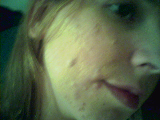 Accutane Day 1 - Left side
