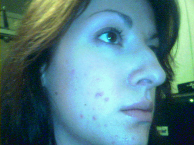 My right cheek / chin the day I decided to give the clear sk
