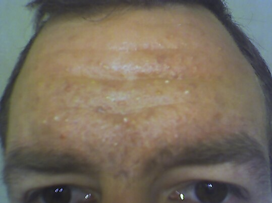 Day 26 forehead