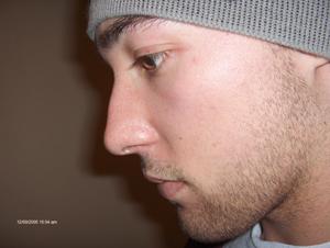 ME : 2005