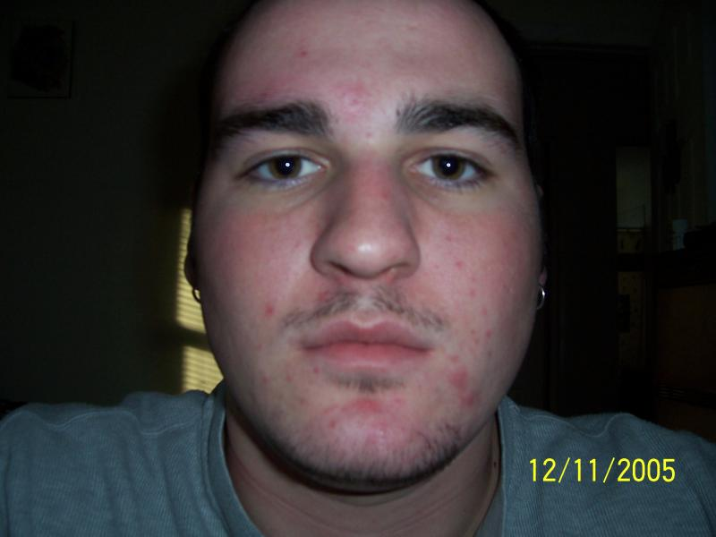 acne returns after accutane