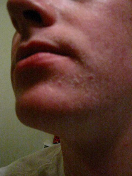 8 Weeks into Accutane