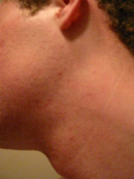 11 Weeks into Accutane