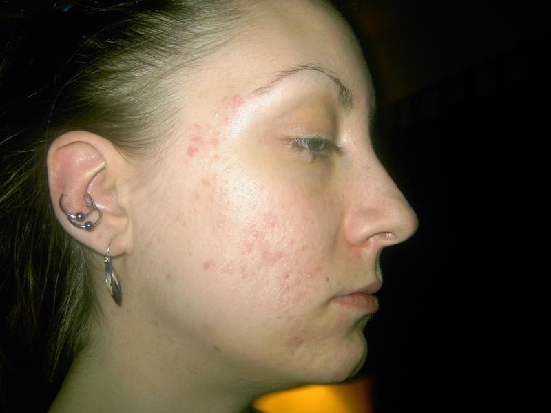acne/scars