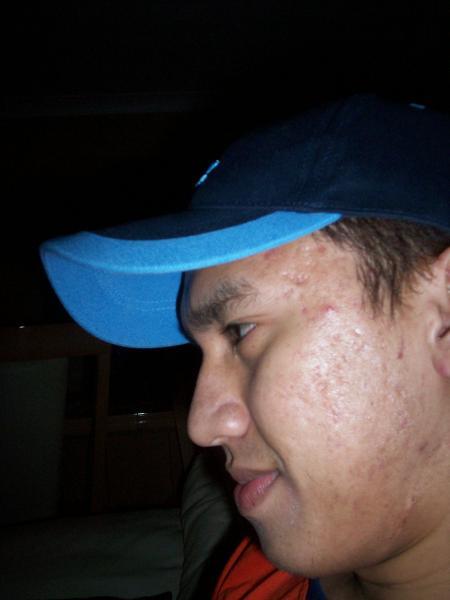 fucking acne