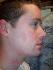 15 Weeks into Accutane