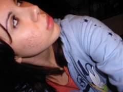 acne6.jpg